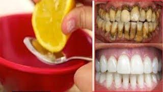 Download सफेद और चमकदार दांत पाए मात्र 2 मिनट में / Get White Teeth in Just 2 Minutes Video
