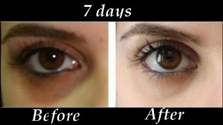 Download How to Remove Under eye Dark Circles in 7 days | DIY Dark Circle Treatment Video