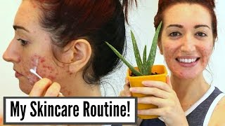 Download My Current Skincare Routine For Severe Acne & Scarring // Oily Skin Treatments Video