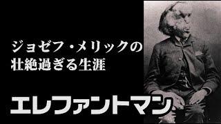 Download エレファントマン その壮絶過ぎる生涯 The Elephant Man 【英国ぶら歩き】 Video