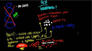 Download Treatment of Sickle Cell Anemia Video