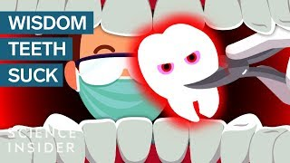 Download Why Do Wisdom Teeth Suck? Video