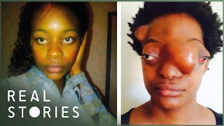 10 Horrible Birth Defects | TWISTED TENS #17 Free Download Video MP4