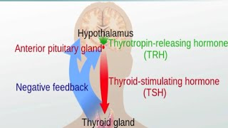 Download Graves' Disease and Hashimoto's Thyroiditis Video