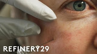 Download I Got Fillers Under My Eye For The First Time | Macro Beauty | Refinery29 Video