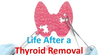 Download Life After a Thyroid Removal Video