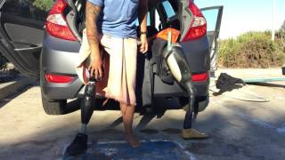 Download Above knee amputee tip: How to don a skin fit suction socket Video