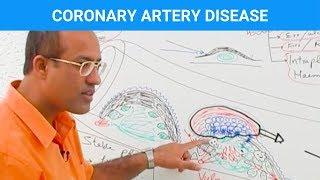 Download Coronary Artery Disease - Ischemic Heart Disease - Angina Video