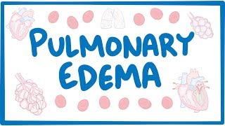 Download Pulmonary Edema - causes, symptoms, diagnosis, treatment, pathology Video
