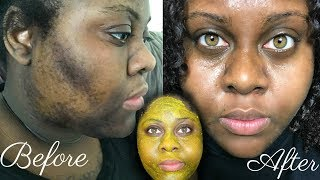 Download 5 DAY TURMERIC FACE MASK CLEARED MY HYPERPIGMENTATION (IM SHOOK) Video