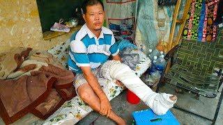 Download Thanh niên gãy chân nằm cầu cứu trên vỉa hè đã được phẩu thuật Video
