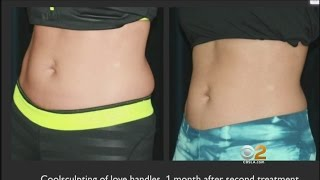 Download Freezing Helps Remove Fat Without Surgery Video