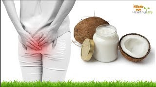 Download How to Get Rid of Hemorrhoids (Piles) Naturally Video