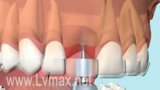 Download Kỹ thuật Implant tối ưu ! Video