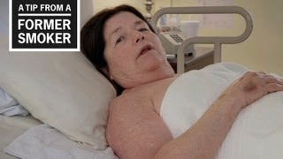 Download CDC: Tips from Former Smokers - Suzy's Ad Video