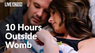 Download Parents love and care for daughter with anencephaly - ″Our Blessing, Our Grace″ Video