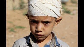 Download Will pressure on the Saudi crown prince impact the humanitarian crisis in Yemen? Video