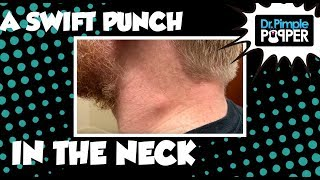 Download A Swift Punch in the Neck Video