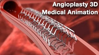 Download Angioplasty - Medical animation Video