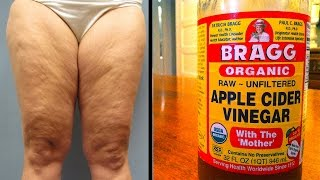 Download HOW TO GET RID OF CELLULITE WITH APPLE CIDER VINEGAR Video