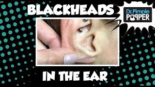 Download Blackheads in the Ear of Ms Rainbow Steatocystoma! Video