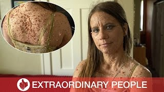 Download Shocking Condition Leaves Woman with Nearly 6,000 Tumors Video