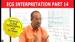 Download EKG or ECG Interpretation - Part 14/20 Video