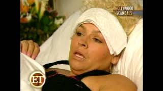 Download Beth Chapman, wife of Dog the Bounty Hunter opens up about plastic surgery by Dr. Svehlak. Video