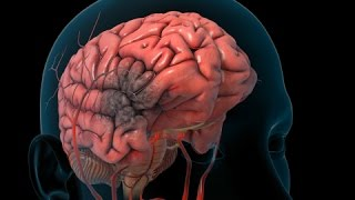 Download Stroke | Nucleus Health Video
