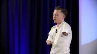 Download Największe bariery, to te w naszych głowach!   Mariusz Kędzierski   TEDxPolitechnikaOpolska Video