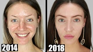 Download What I've Had Done to My Face   My Transformation Video