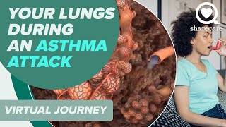 Download Patient Journey: What Happens in Your Lungs During an Asthma Attack (360 Video) Video