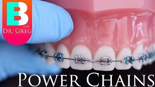 Download Braces Explained: Power Chains Video