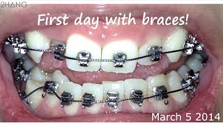 Download BRACES BEFORE AND AFTER TIME LAPSE Video