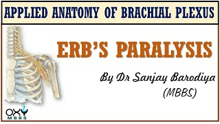 Download Erb's Paralysis Video