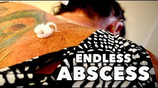 Download DRAINING MY WIFES ENDLESS BACK ABSCESS! | Dr. Paul Video