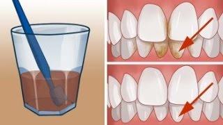 Download Cómo eliminar el sarro de los dientes naturalmente Video