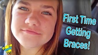 Download FIRST TIME GETTING BRACES ON! Video