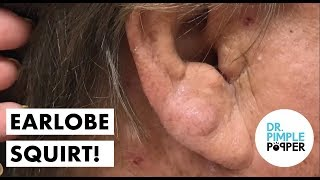 Download A Cute Little Squirt on the Earlobe! Video