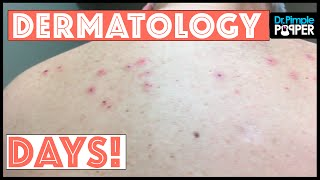 Download Just a Day in the Life of Dr Pimple Popper: DermDays Video