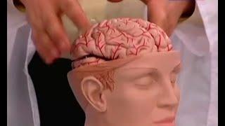 Download Инсульт - симптомы и причины, способы лечения. Первая помощь при инсульте Video