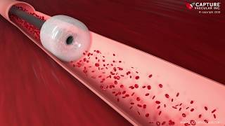 Download Capture Vascular Peripheral Animation Video