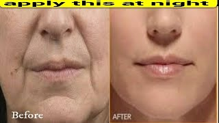 Download APPLY THIS AT NIGHT REMOVE DEEP MOUTH WRINKLES NEXT DAY Video