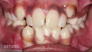 Download Before and After Braces At The Orthodontic Centre Video