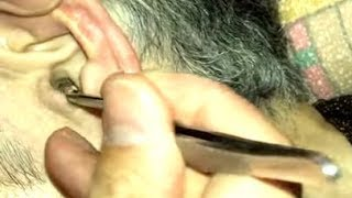 Download Ear wax removal and refusal 耳かきやめて! 귀이개 그만! Video
