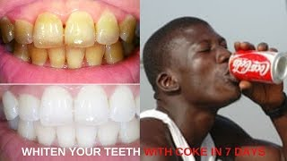 Download COCA- COLA WILL WHITEN YOUR TEETH IN LESS THAN 7 DAYS Video