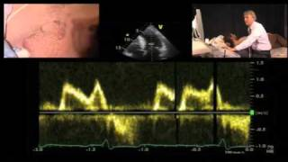 Download Diastolic Function — A Simple Approach Video