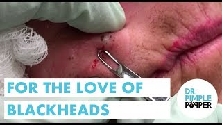Download For the LOVE of Blackheads Video
