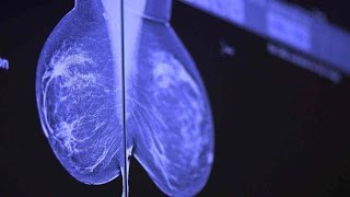 Download How To Catch Breast Cancer Early: Stanford Doctors Explain Mammography Options Video