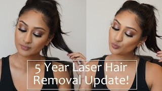 Download 5 Year Full Body Laser Hair Removal Update! | Makeup By Megha Video